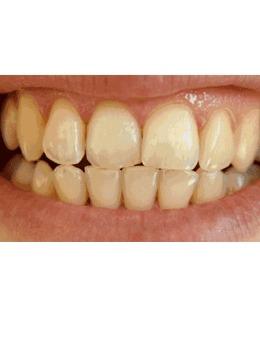山东淄博壹美整形美容口腔医院牙齿冷光美白案例图