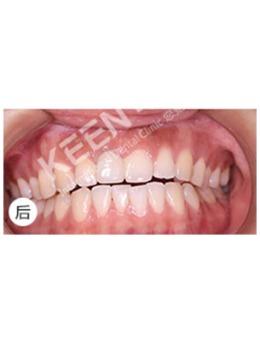潍坊可恩口腔医院门牙缺失种植牙后,终于恢复了笑容!