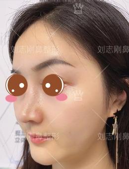 广州爱莱美整形医院隆鼻+鼻尖整形案例对比