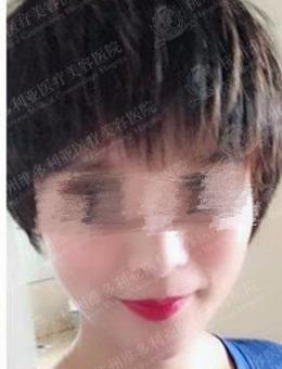 杭州维多利亚整形医院面部脂肪填充案例