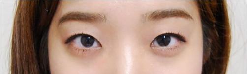 韩国IVE整形外科医院 双眼皮手术案例