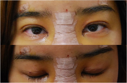 韩国IVE整形医院 双眼皮+隆鼻手术第四天
