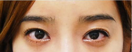 韩国IVE整形医院 双眼皮+隆鼻术后第五天