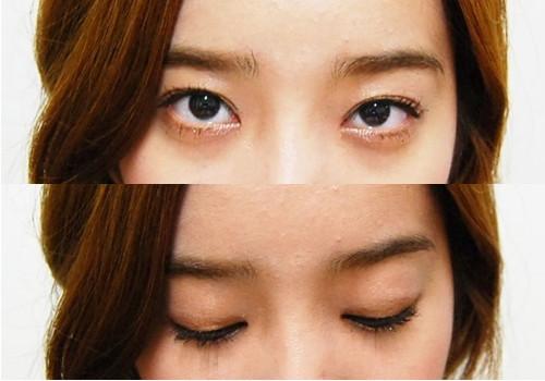 韩国IVE整形医院 双眼皮+隆鼻手术真人秀