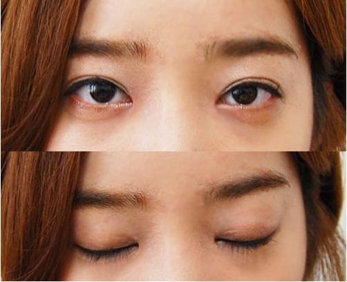 韩国IVE整形医院  双眼皮+隆鼻术后两个月