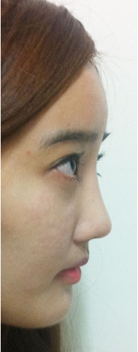 韩国IVE整形医院 隆鼻术后