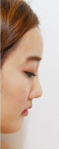韩国IVE整形医院 隆鼻术后两个月