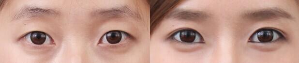 眼部整形前后对比案例