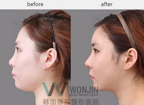 鼻部整形前后对比案例