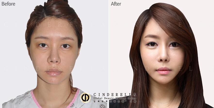 面部轮廓整形对比案例