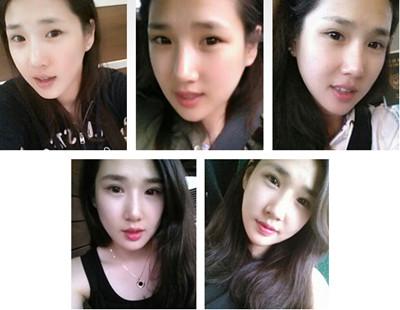 韩国面部轮廓整形术后六个月