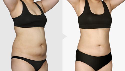 韩国TL整形外科腹部吸脂案例对比