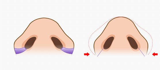 韓國鼻翼縮小手術示意圖 鼻翼縮小價格表