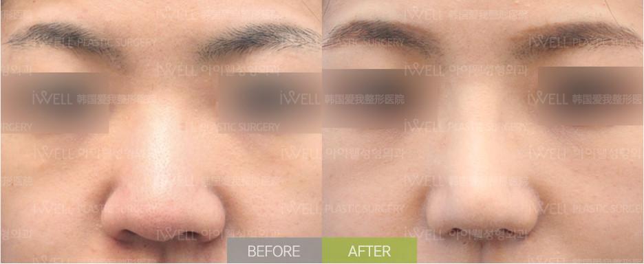 韓國愛婷鼻翼縮小手術案例