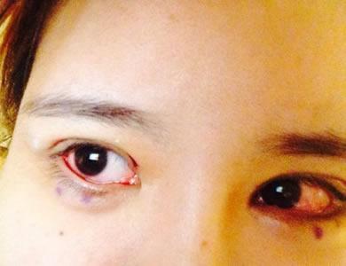做完双眼皮修复第三天