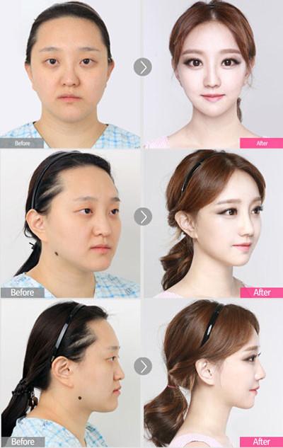 韩国faceline颜面整形对比图片