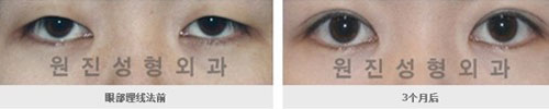 双眼皮手术效果图