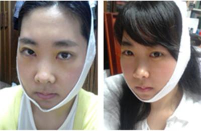 韓國菲斯萊茵面部輪廓手術真實經歷