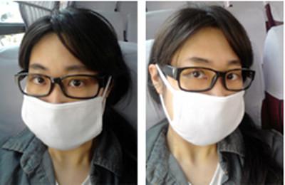 韓國面部輪廓手術經歷