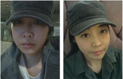 韓國面部輪廓手術案例術后一個月