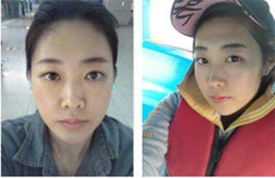 韓國面部輪廓手術案例恢復日記