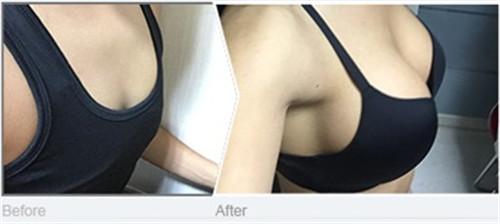 韩国原辰整形外科假体隆胸案例对比