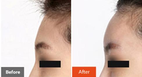 韩国Dr.O S.Clinic整形外科额头填充案例对比图