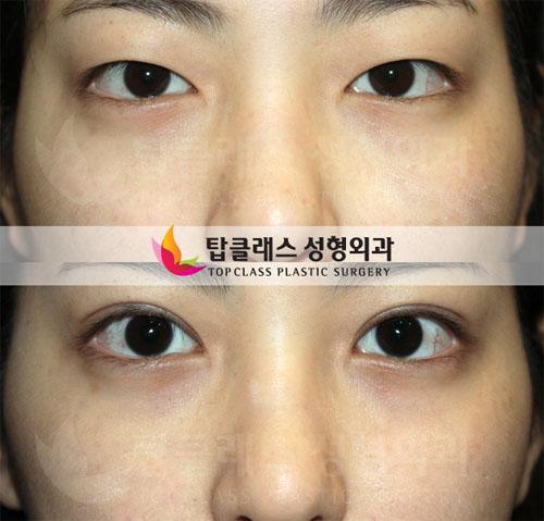 韩国出色医院自然双眼皮图片