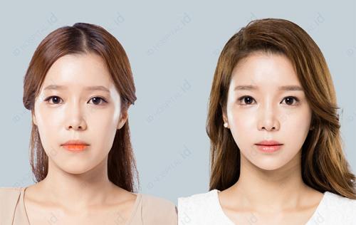 眼部整容有哪些_TS和ID眼部整形案例对比,谁做的双眼皮更自然?-非常爱美