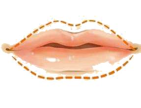 韩国嘴角整形