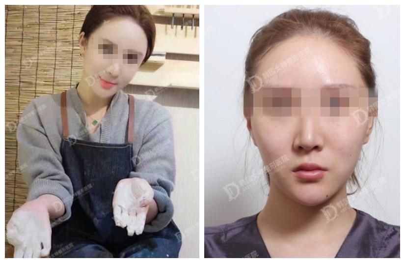 女神医院微笑唇术前术后对比图