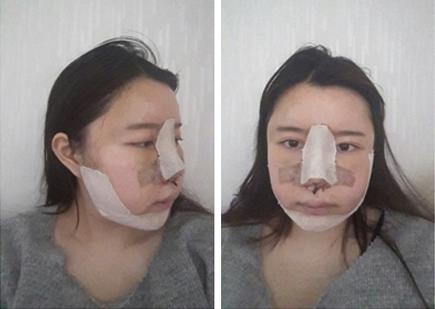 在韩国灰姑娘做了面部轮廓整形
