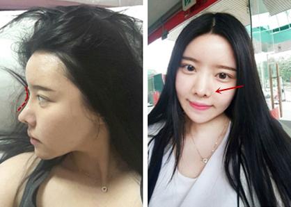 韩国灰姑娘做轮廓手术有哪些特点