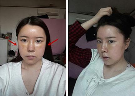 灰姑娘做面部轮廓整形术后肿胀严重吗
