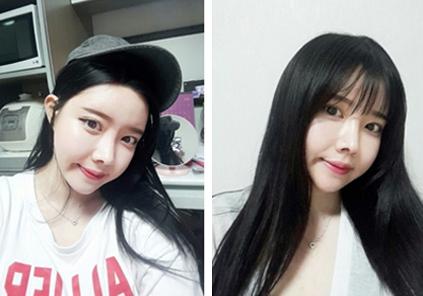 韩国灰姑娘做轮廓手术优势有哪些