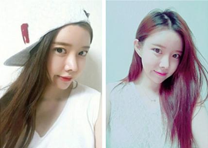 韩国灰姑娘做轮廓整形术后恢复照片