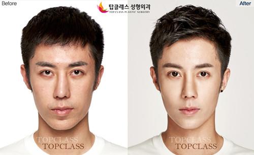topclass整形外科隆鼻整形对比图-正面