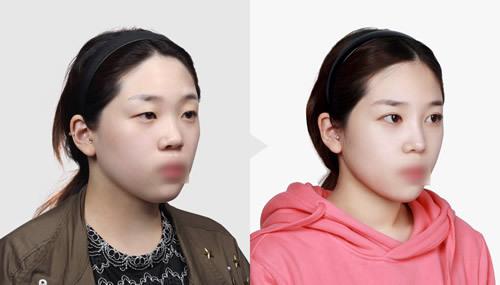 韩式三点定位双眼皮手术案例