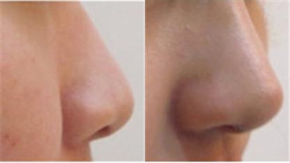 韩国狎鸥亭line整形外科隆鼻对比案例