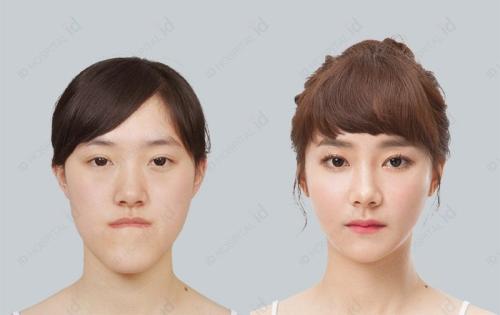 韩国ID医院面部轮廓真人案例效果