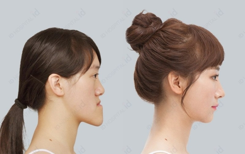 韩国ID医院面部轮廓真人案例