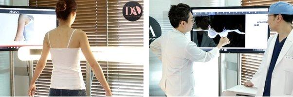 韓國DA假體隆胸數錢檢查