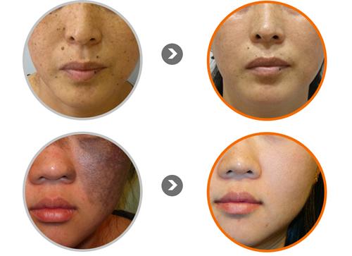 韩国童颜中心面部祛斑案例对比