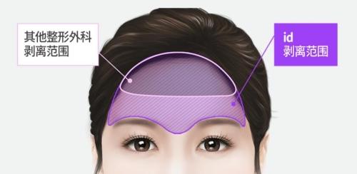 ID医院提眉术手术方法