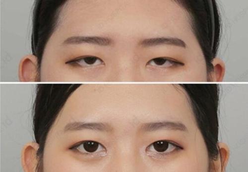 韩国ID医院提眉术对比照片