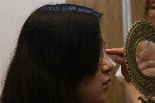假体隆鼻能不能抬高鼻尖