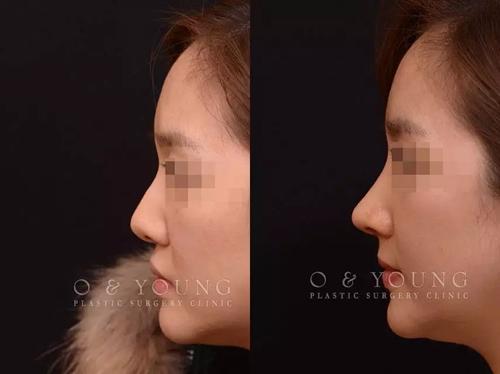 韩国假体隆鼻垫鼻尖案例对比