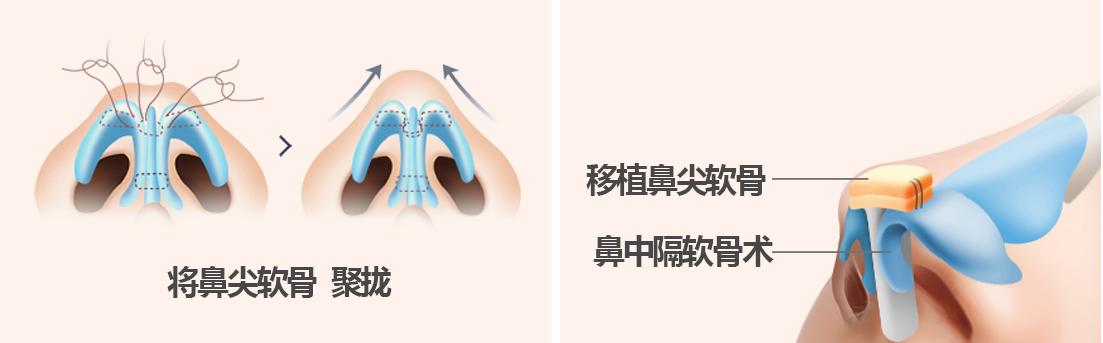韓國墊鼻尖手術圖示