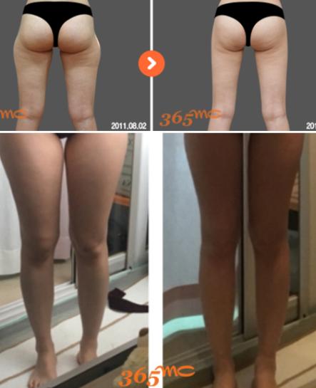 韩国365mc吸脂瘦大腿案例对比
