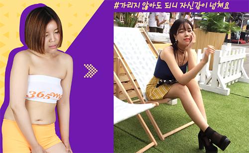 韩国365mc全身吸脂案例